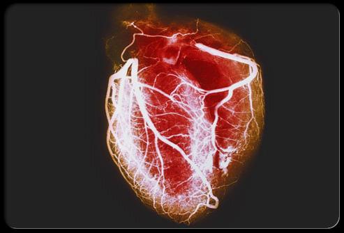 Heart-disease-visual-guide-s1-arteriogram-of-healthy-heart